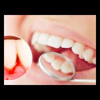 Záněty v ústech